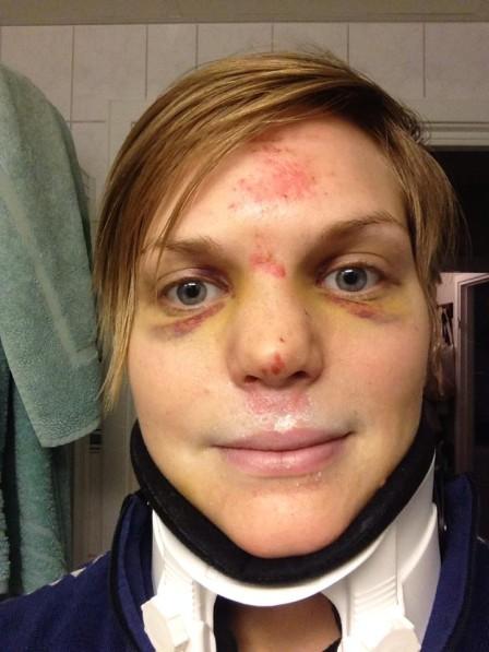Nackkragar kan behövas i vissa lägen, till exempel om en landar på ansiktet och får frakturer på nackutskotten.